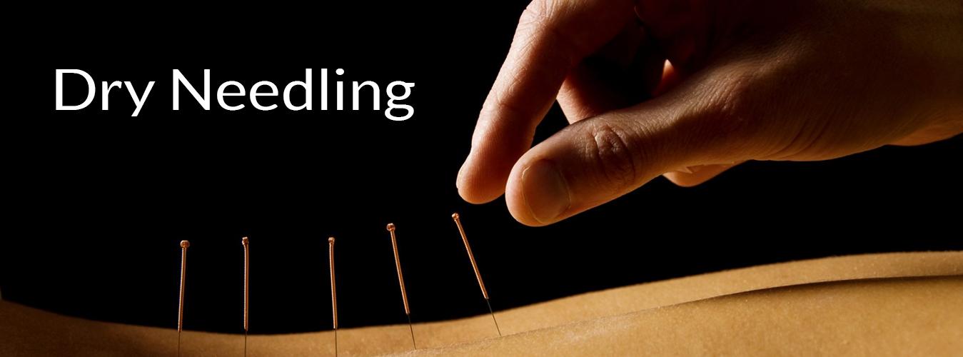 Dry needling in Bendigo